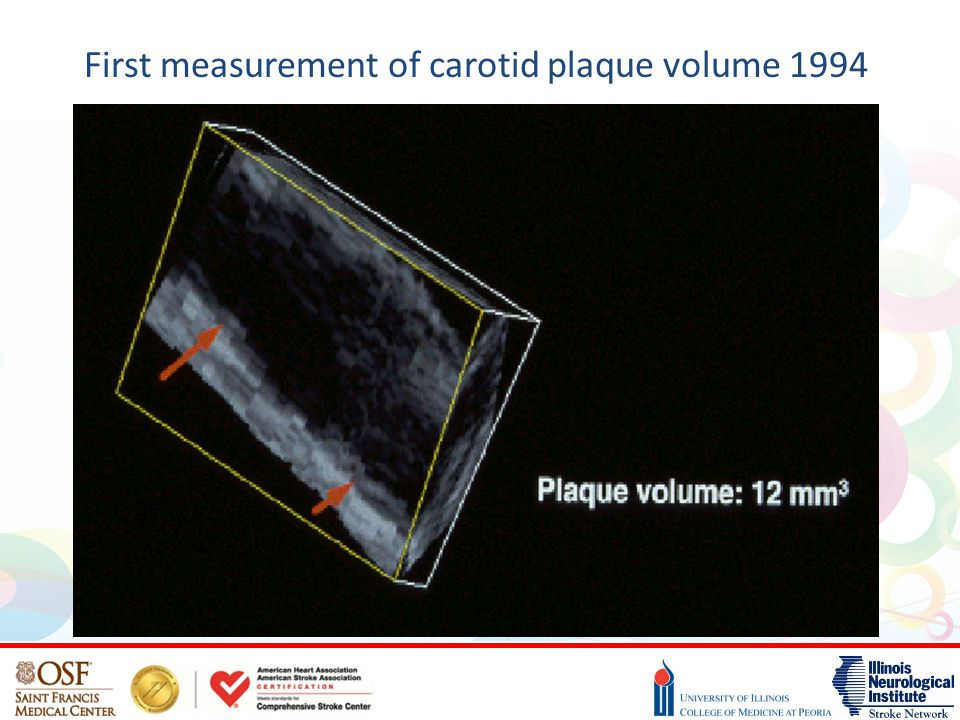 First measurement of carotid plaque volume 1994