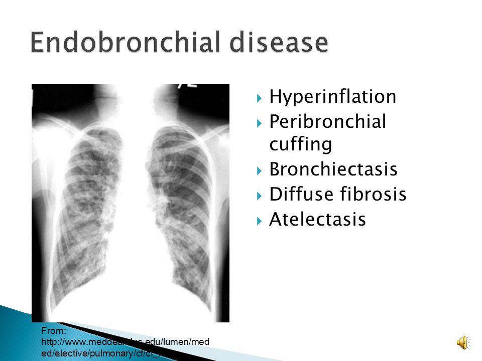 Endobronchial disease