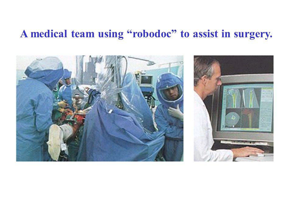 A medical team using robodoc to assist in surgery.