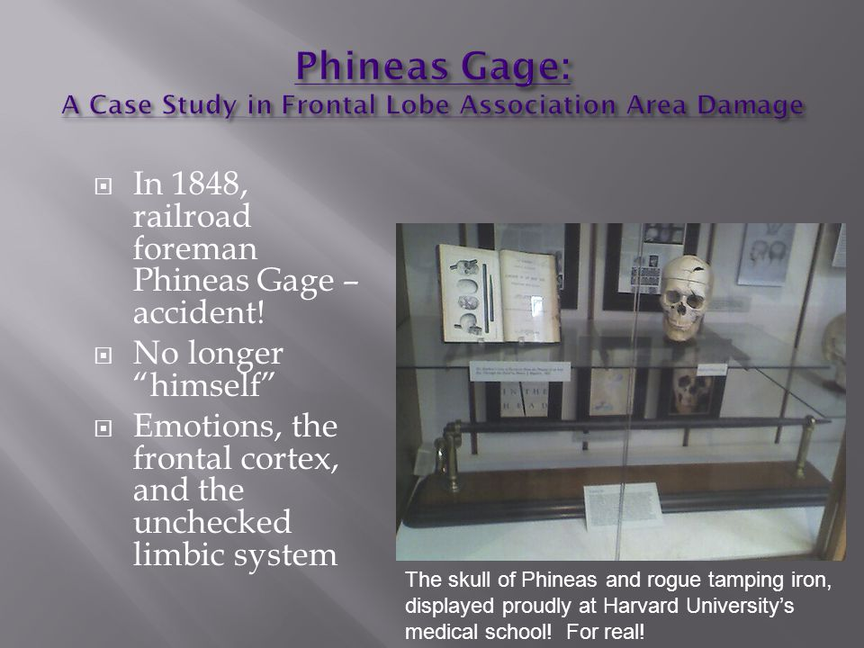 Phineas Gage: A Case Study in Frontal Lobe Association Area Damage