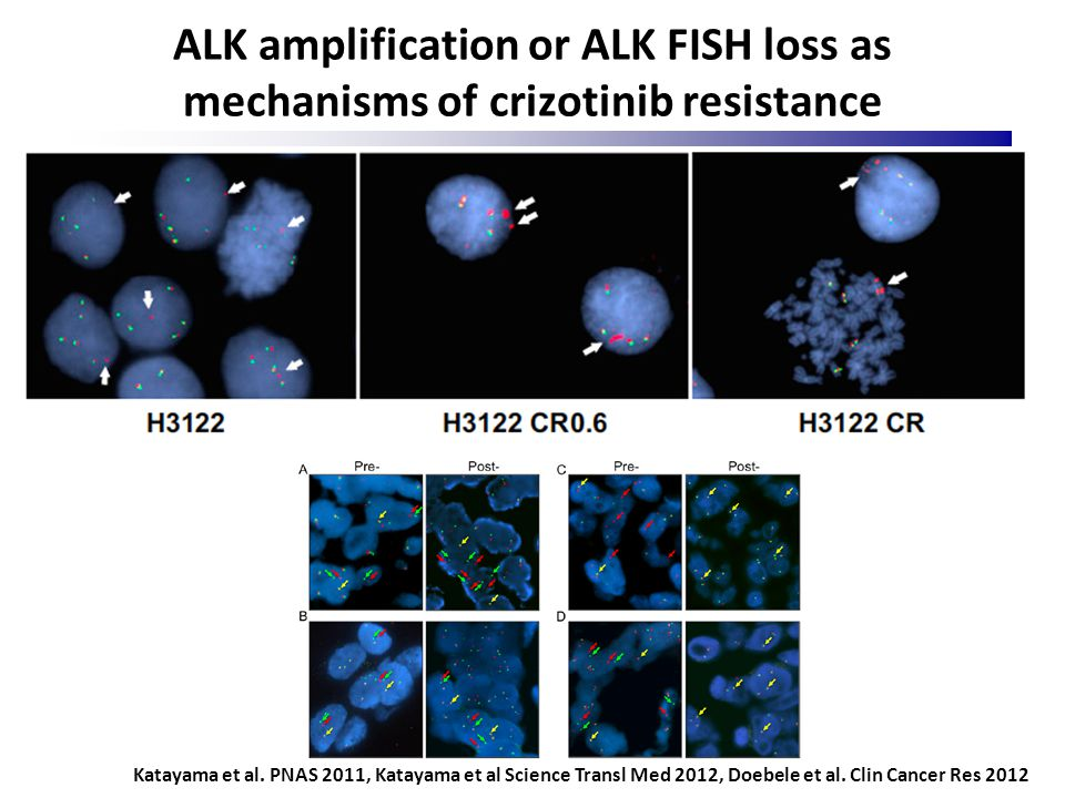 ALK amplification or ALK FISH loss as mechanisms of crizotinib resistance