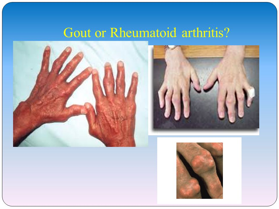 Gout or Rheumatoid arthritis