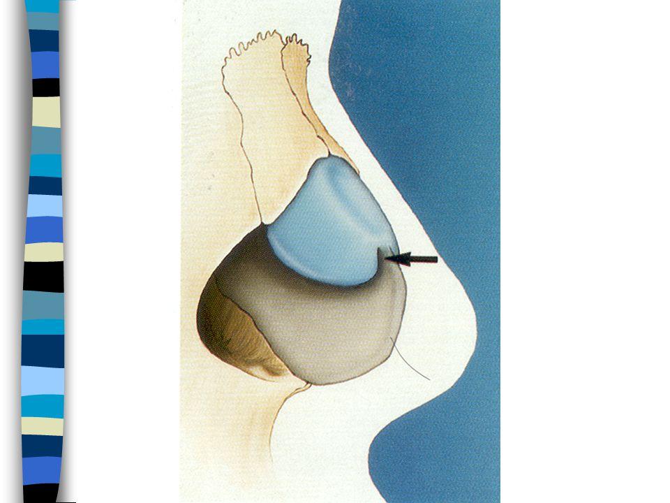 ULC and nasal valve photo
