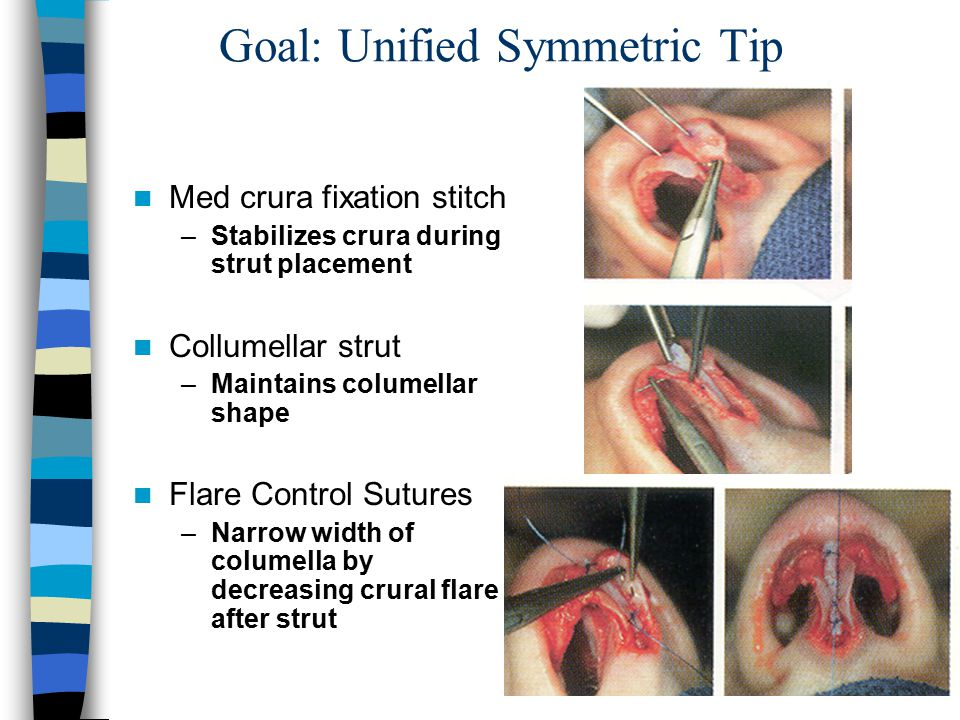 Goal: Unified Symmetric Tip