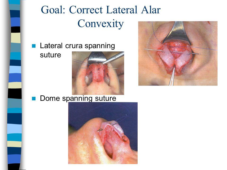 Goal: Correct Lateral Alar Convexity