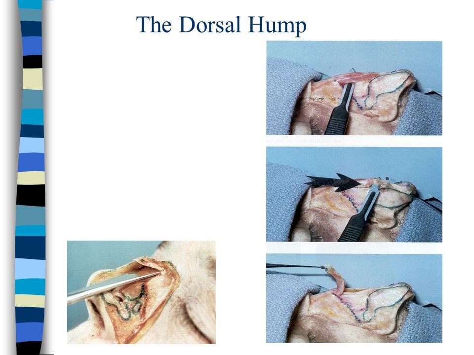 The Dorsal Hump