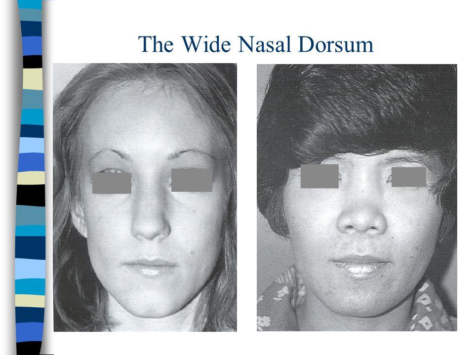 The Wide Nasal Dorsum