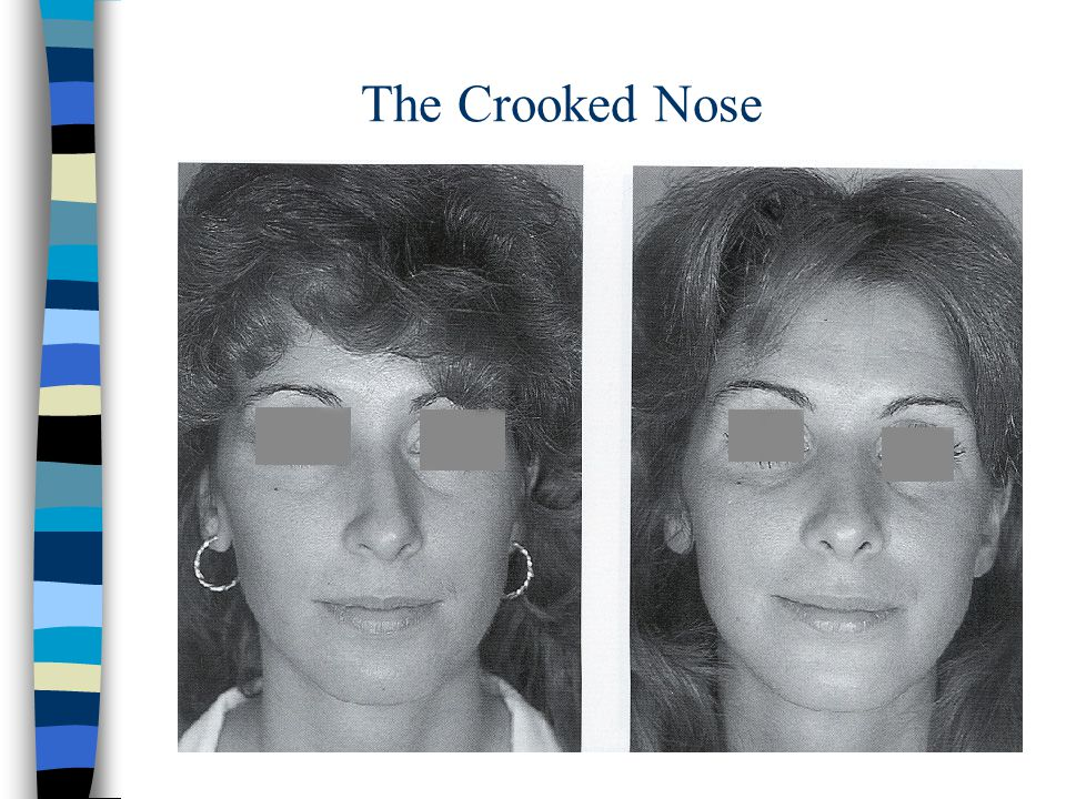 The Crooked Nose