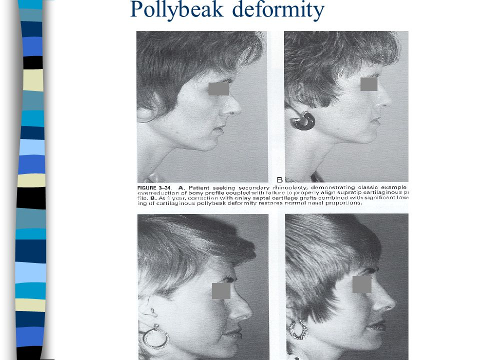 Pollybeak deformity