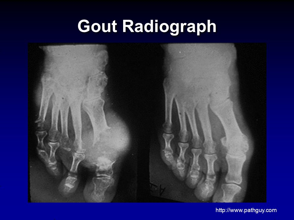 Gout Radiograph http://www.pathguy.com 18