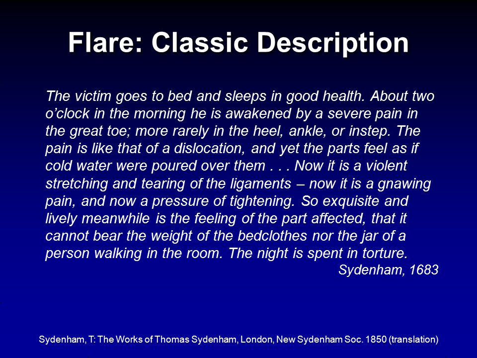Flare: Classic Description