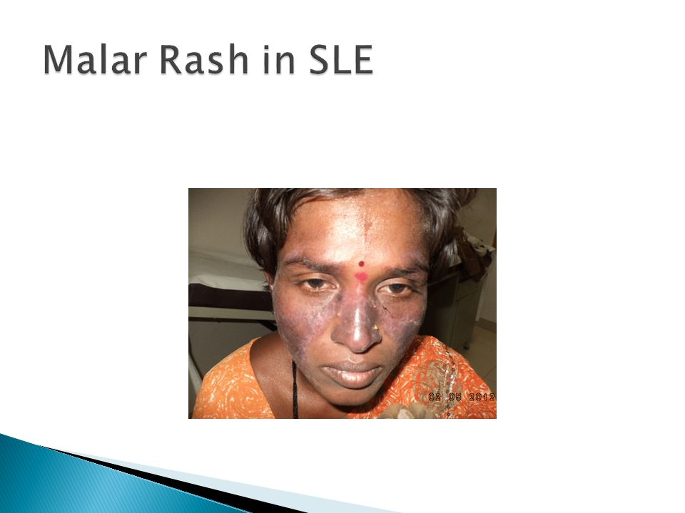 Malar Rash in SLE