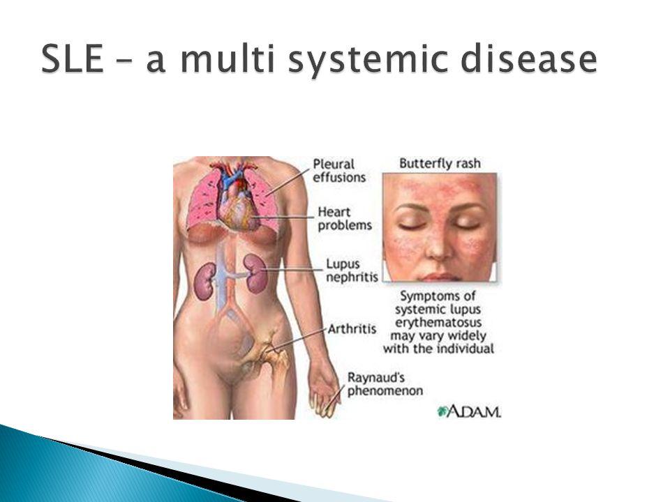 SLE – a multi systemic disease
