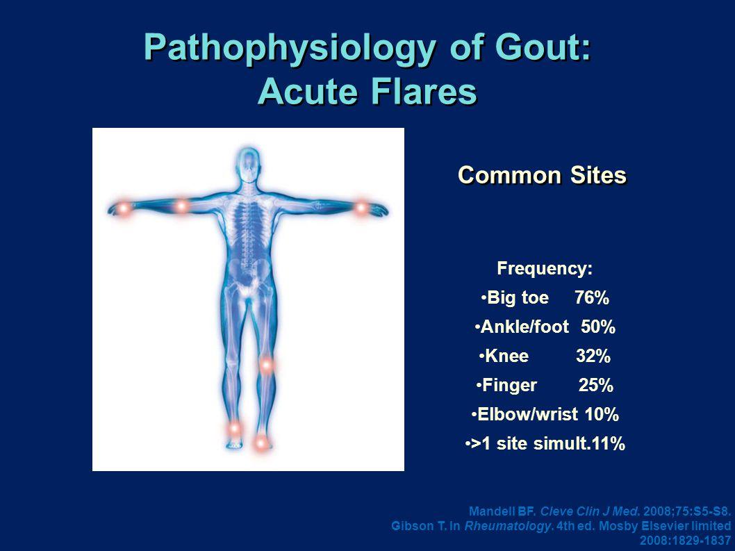 Pathophysiology of Gout: Acute Flares