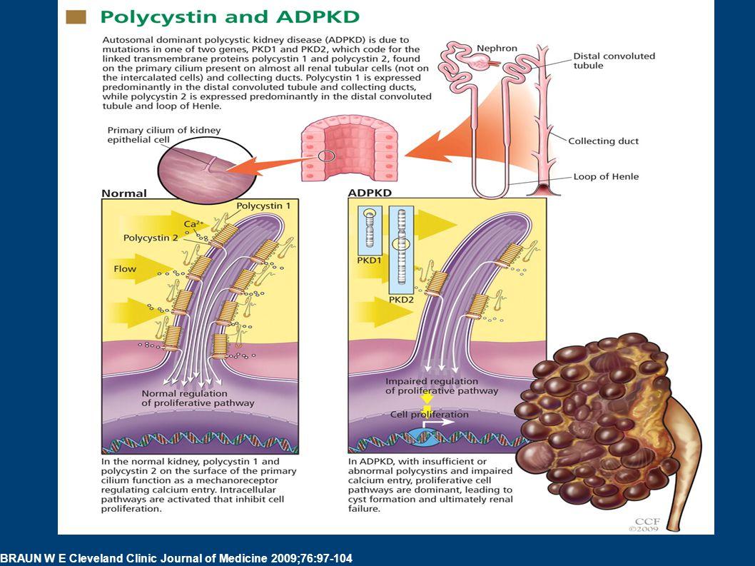 Polycystin and ADPKD. Polycystin and ADPKD