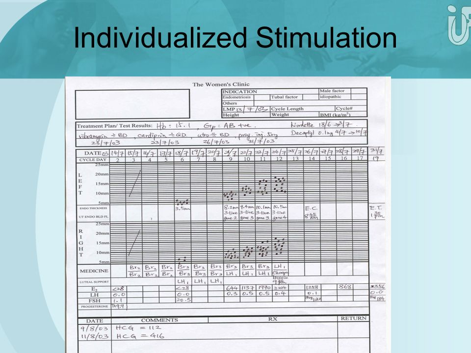 Individualized Stimulation