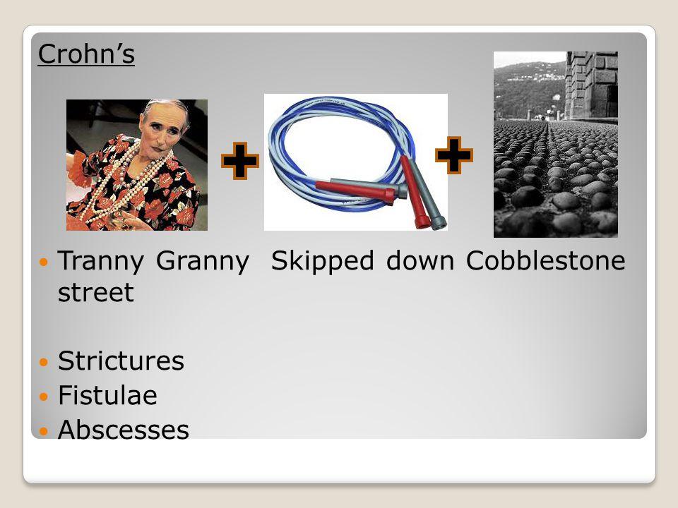 Tranny Granny Skipped down Cobblestone street