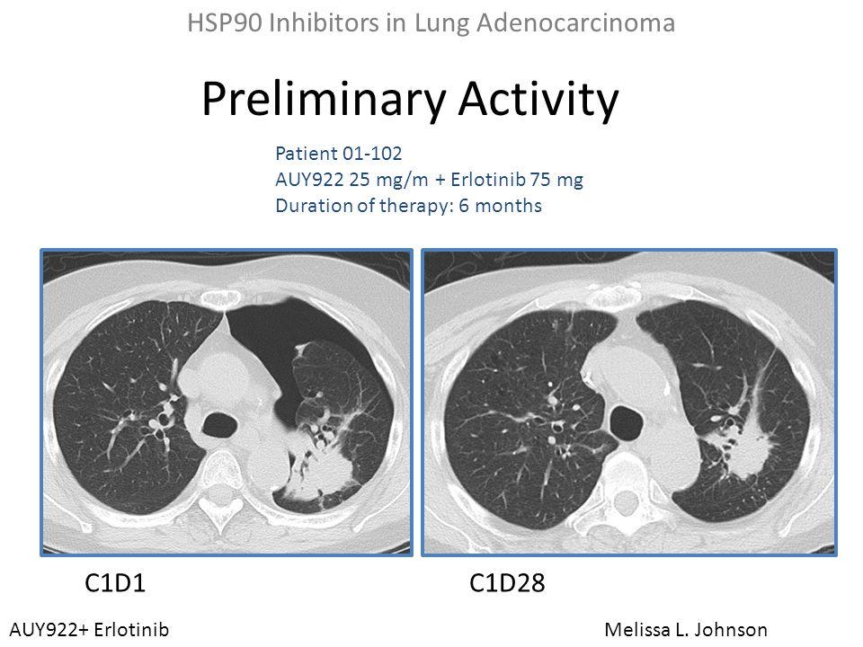 HSP90 Inhibitors in Lung Adenocarcinoma
