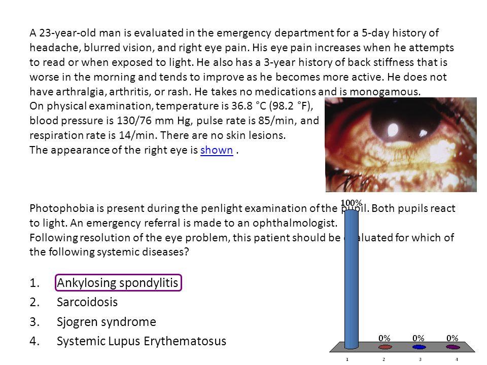 Ankylosing spondylitis Sarcoidosis Sjogren syndrome