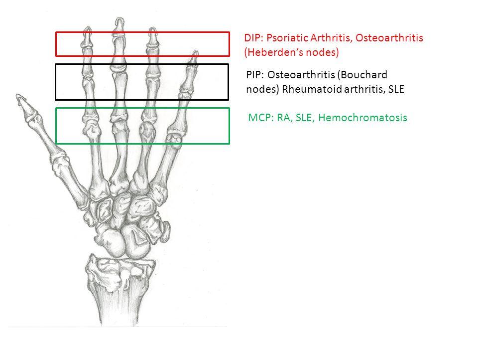 DIP: Psoriatic Arthritis, Osteoarthritis (Heberden's nodes)