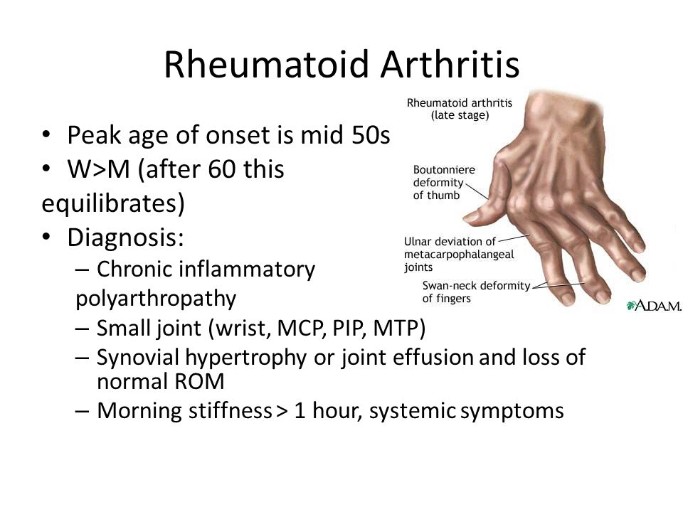 Rheumatoid Arthritis Peak age of onset is mid 50s