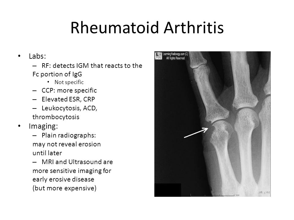 Rheumatoid Arthritis Labs: Imaging: RF: detects IGM that reacts to the