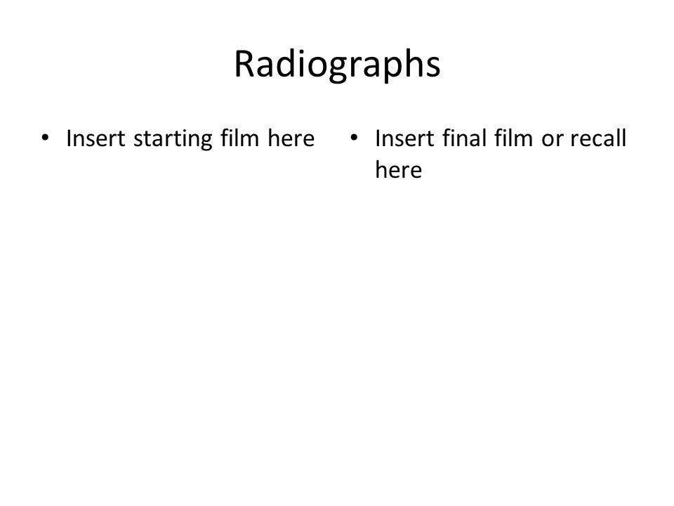 Radiographs Insert starting film here Insert final film or recall here