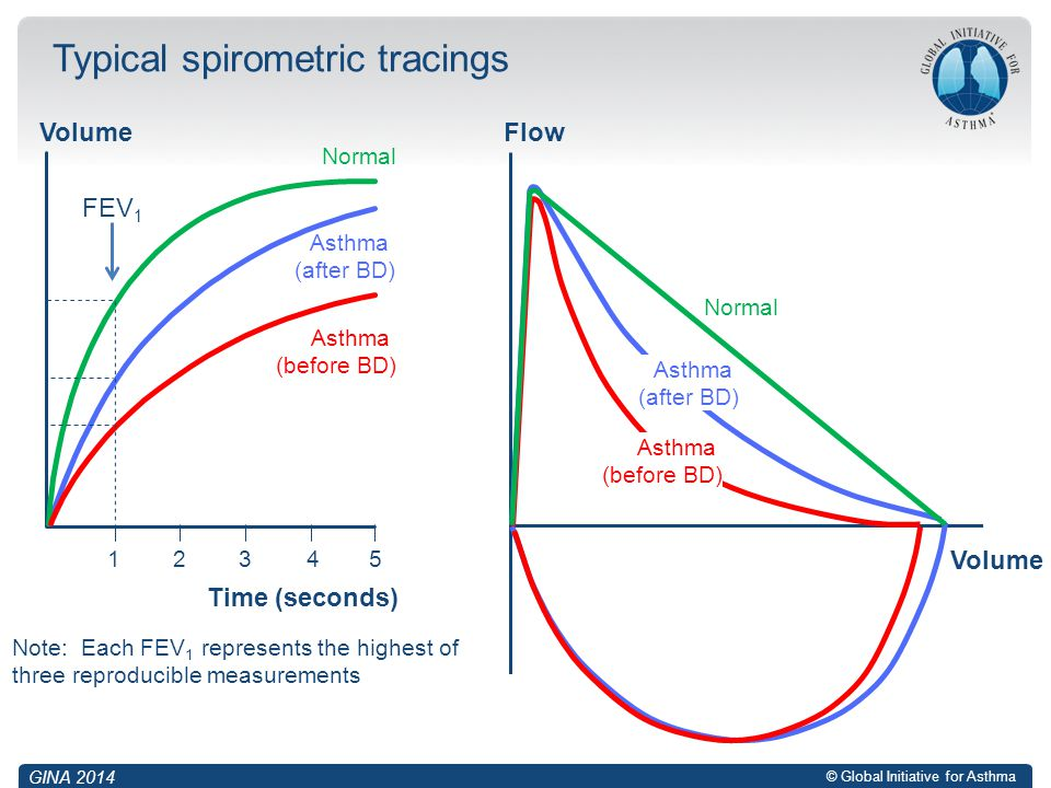 Typical spirometric tracings