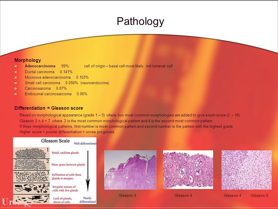 Pathology Morphology Differentiation = Gleason score