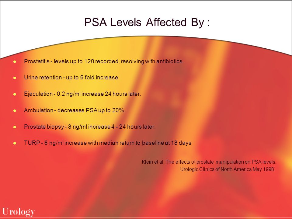 PSA Levels Affected By :