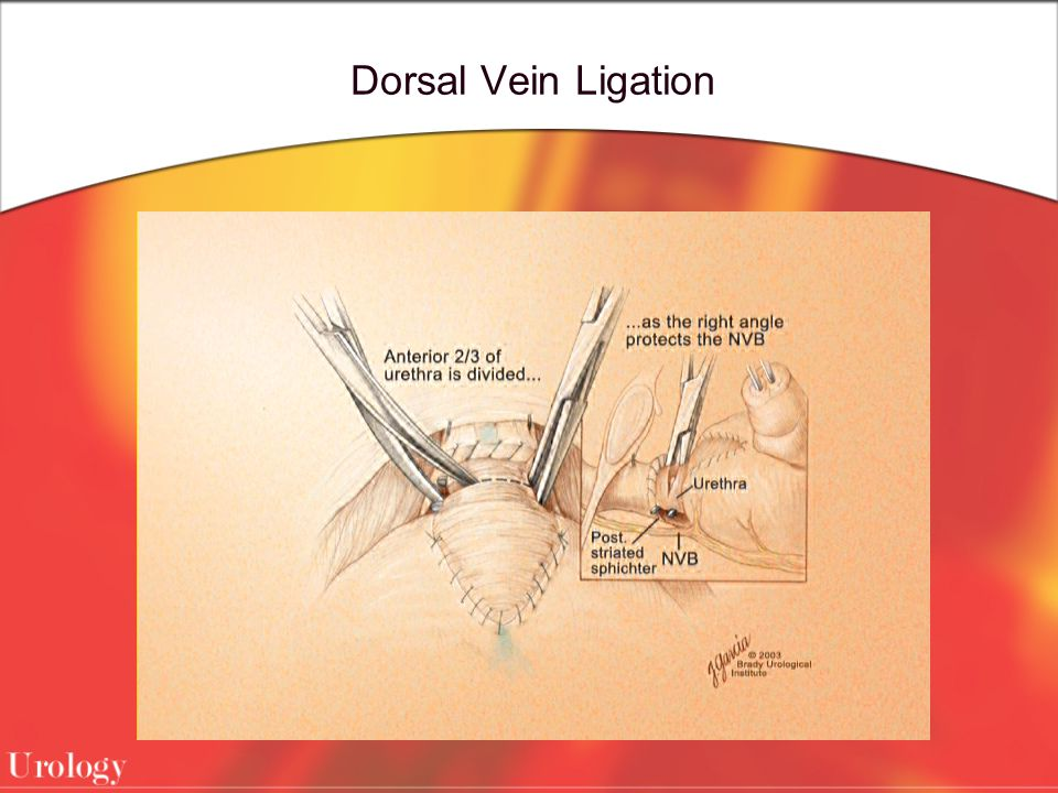 Dorsal Vein Ligation