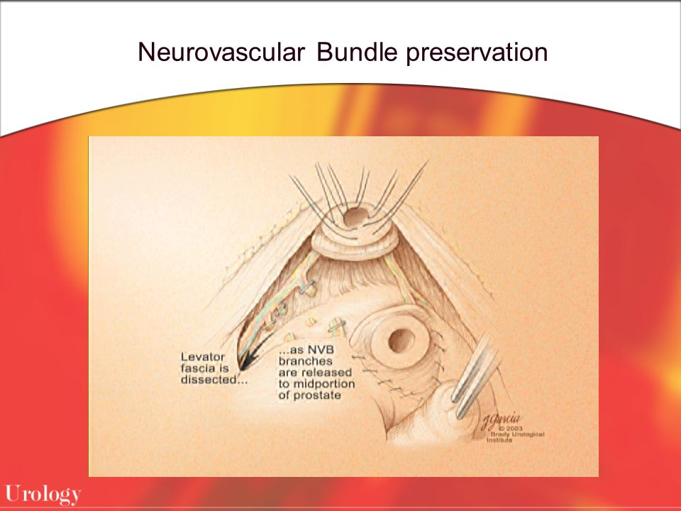 Neurovascular Bundle preservation