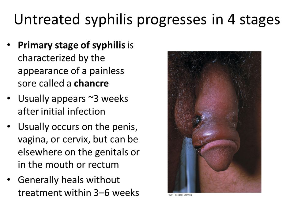 Syphilis mouth sores