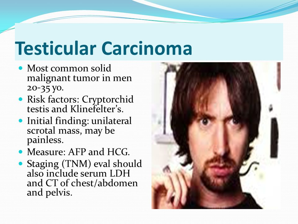 Testicular Carcinoma Most common solid malignant tumor in men 20-35 yo. Risk factors: Cryptorchid testis and Klinefelter's.