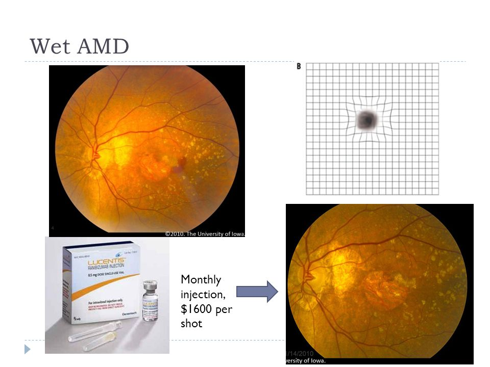Wet AMD Monthly injection, $1600 per shot