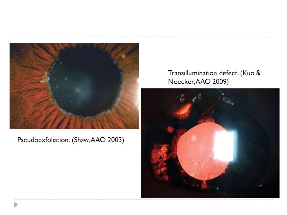 Transillumination defect. (Kuo & Noecker, AAO 2009)