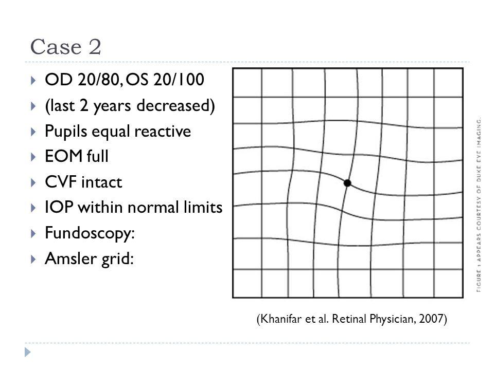 Case 2 OD 20/80, OS 20/100 (last 2 years decreased)