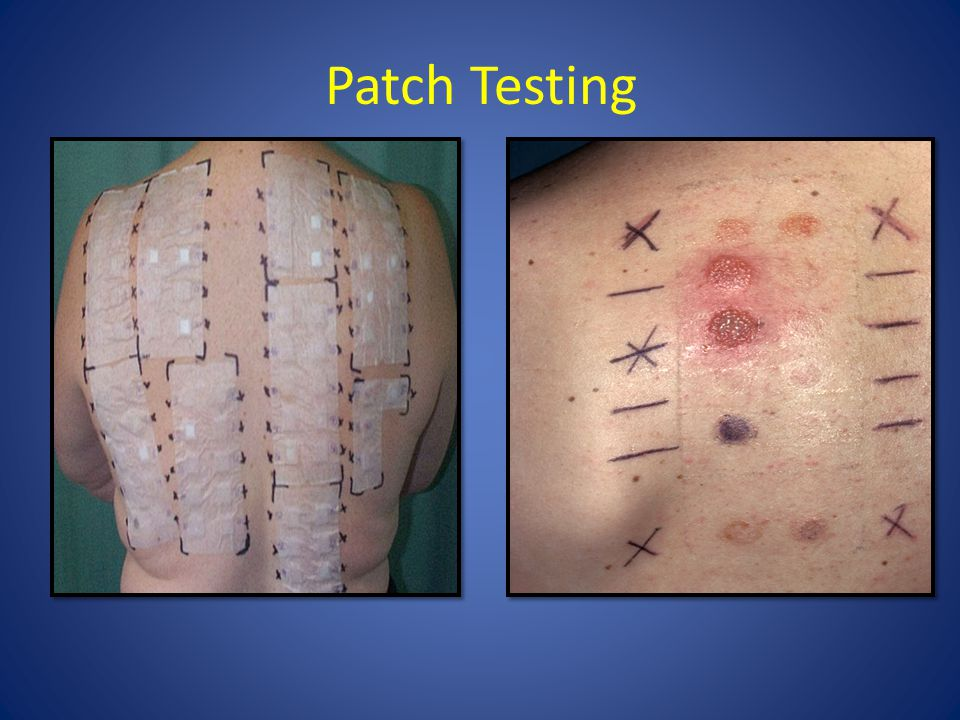 Patch Testing