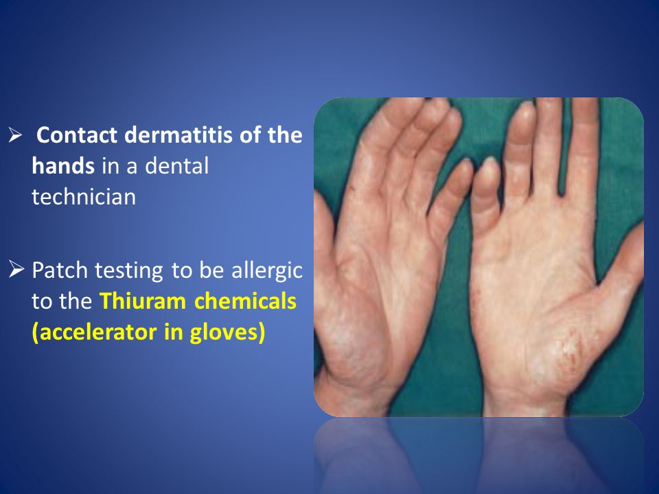Contact dermatitis of the hands in a dental technician