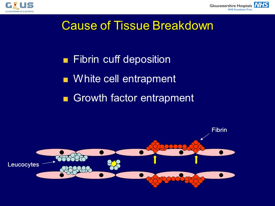 Cause of Tissue Breakdown