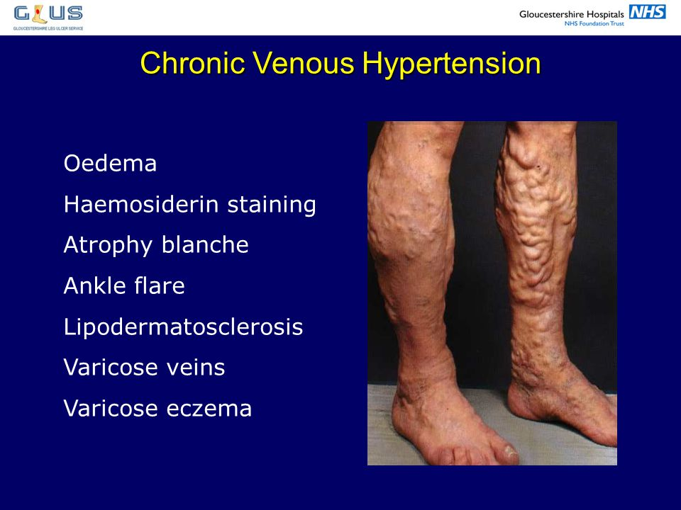 Chronic Venous Hypertension
