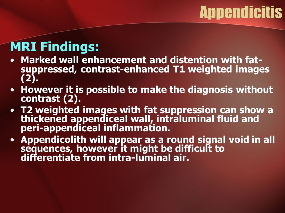 Appendicitis MRI Findings: