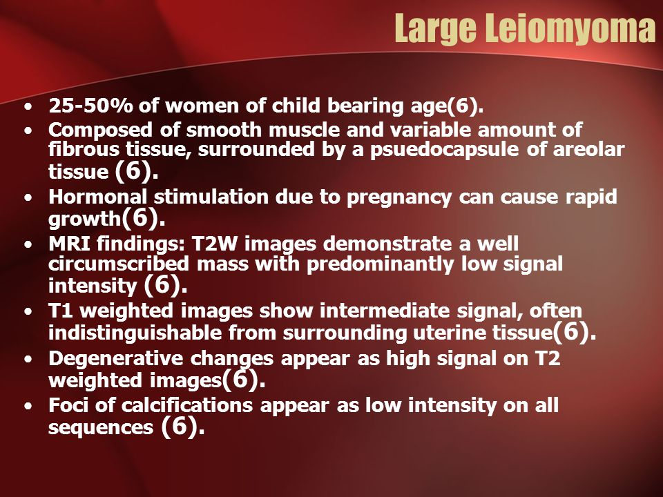 Large Leiomyoma 25-50% of women of child bearing age(6).