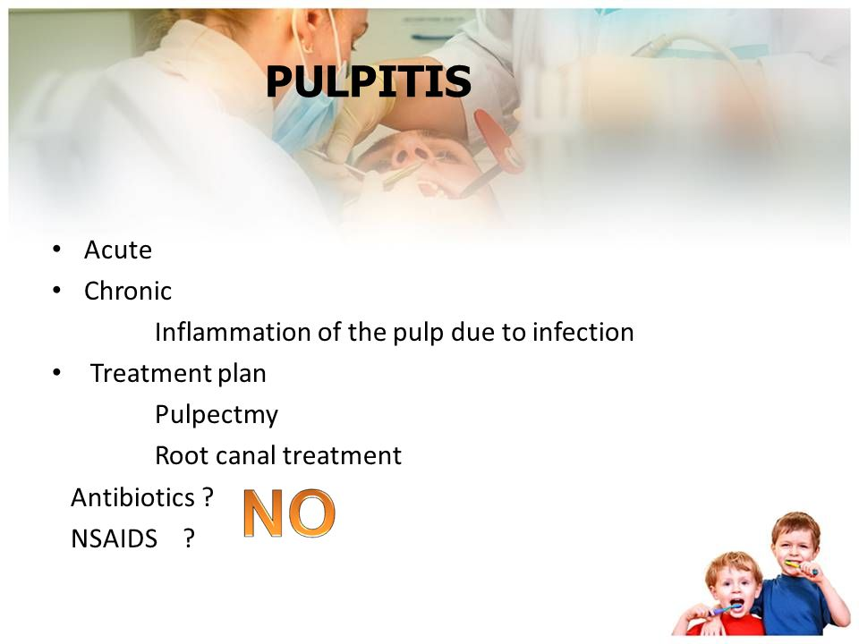 PULPITIS Acute Chronic Inflammation of the pulp due to infection