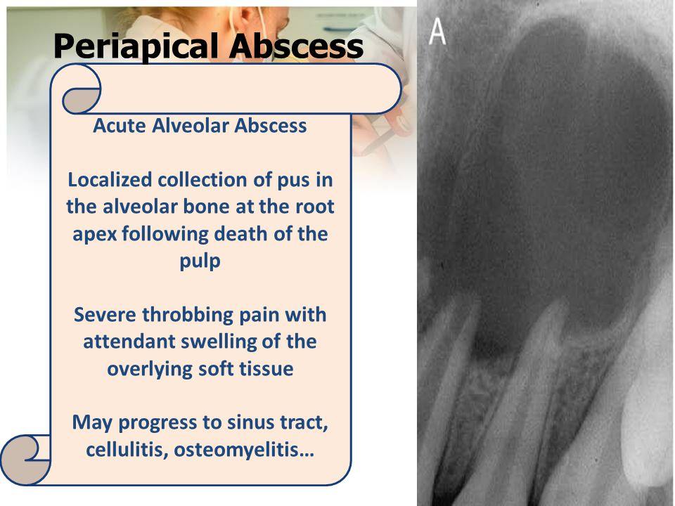 Acute Alveolar Abscess