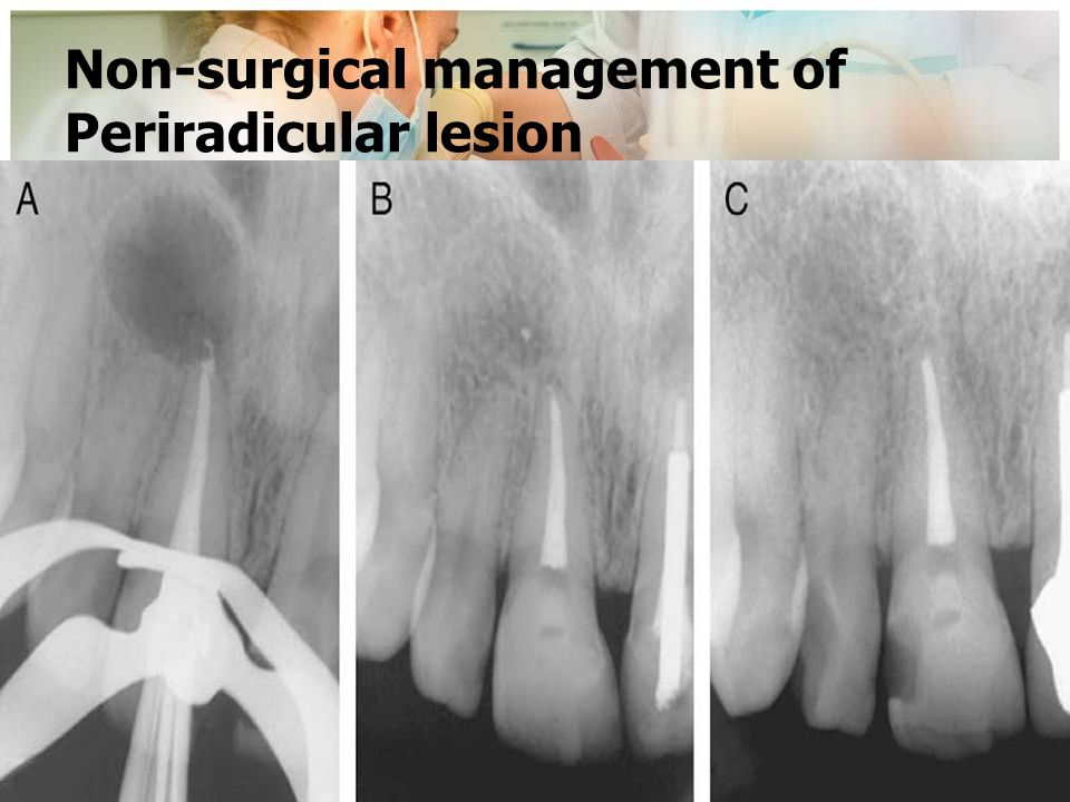 Non-surgical management of Periradicular lesion