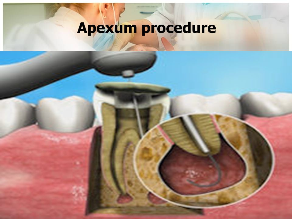 Apexum procedure