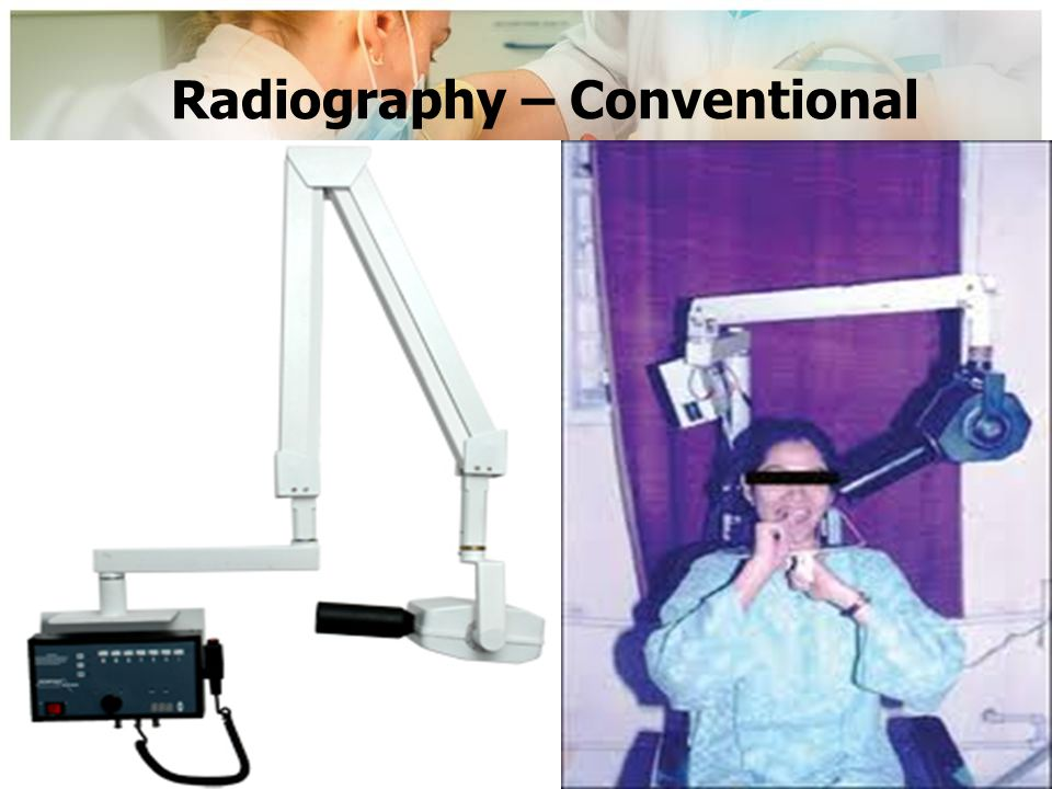 Radiography – Conventional