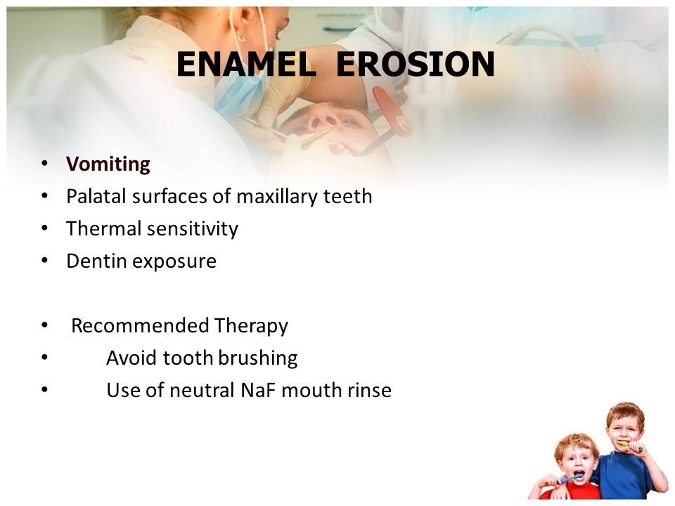 ENAMEL EROSION Vomiting Palatal surfaces of maxillary teeth