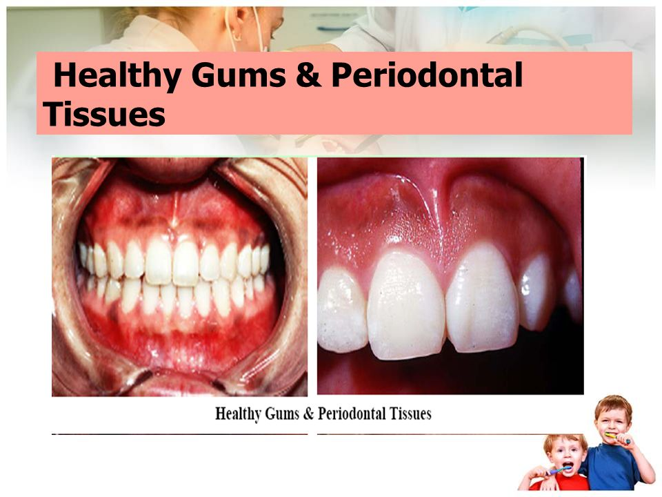 Healthy Gums & Periodontal Tissues